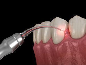 Laser Gum Therapy Philadelphia
